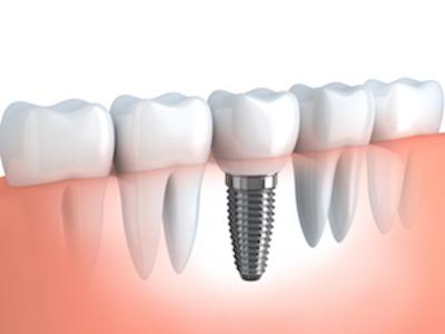 Dental Implants | McKnight Signature Dental