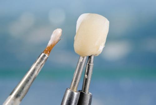 Dental Veneer | McKnight Signature Dental