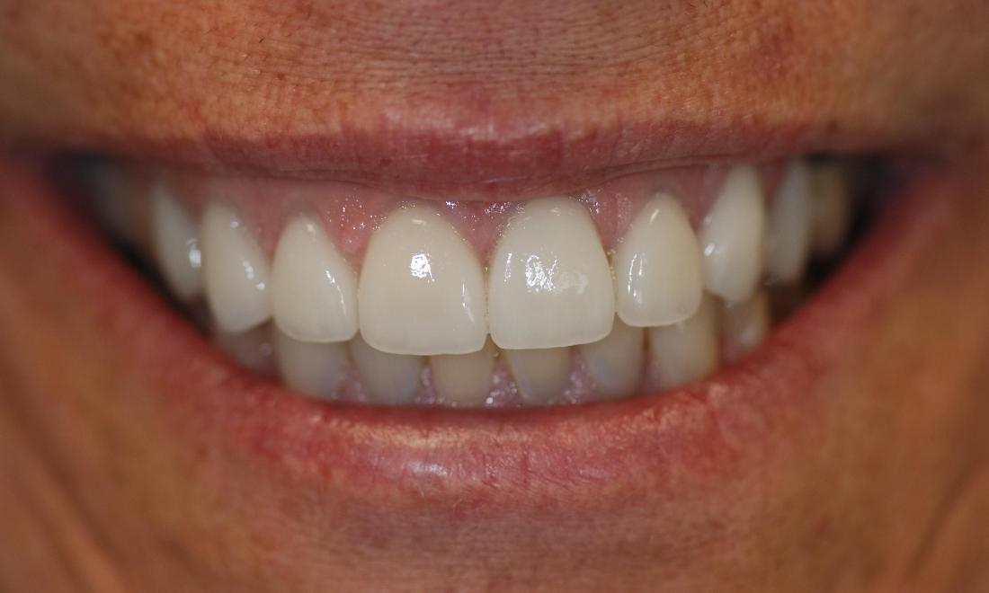 Porcelain Veneers After Surgery | McKnight Signature Dental