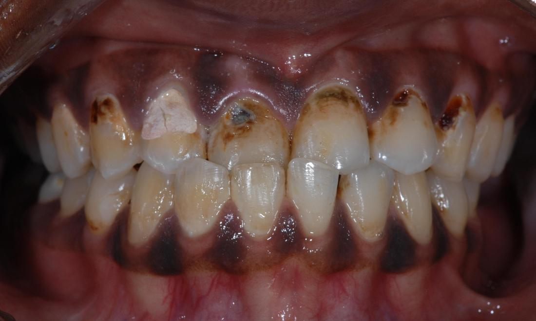 Bonded Restorations Before Surgery | McKnight Signature Dental